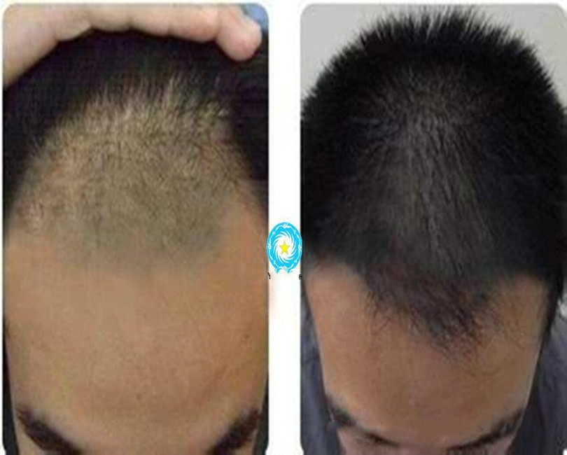 10mg Tripeptide, Hair Growth Peptide, Cosmetic Material, Hair Growth Prevention, Hair Loss Prevention
