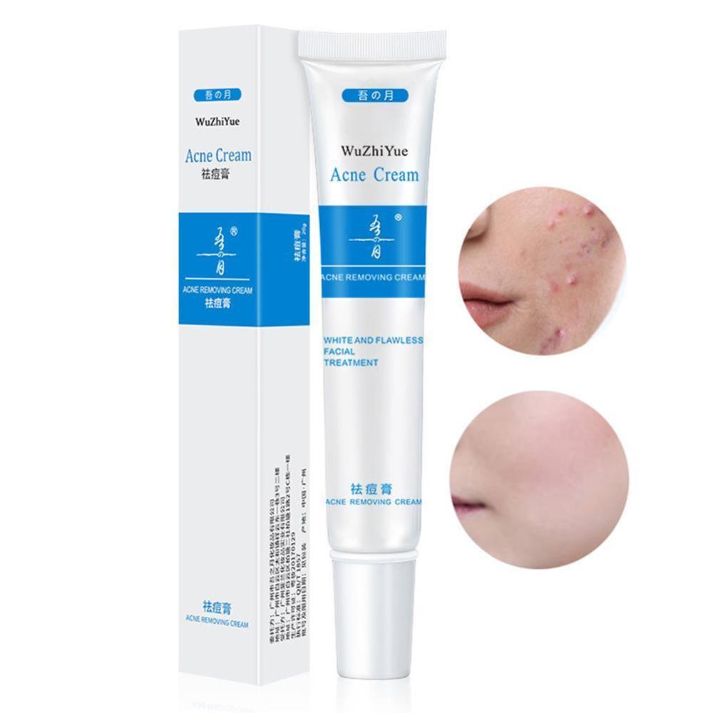 Herbal Face Cream Anti Acne Treatment Cream Herbal Scar Removal
