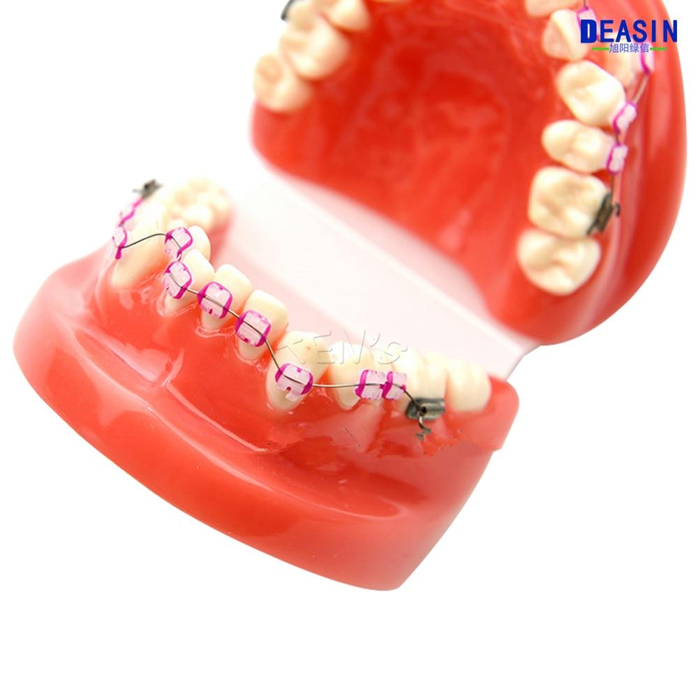 龅牙 (7)