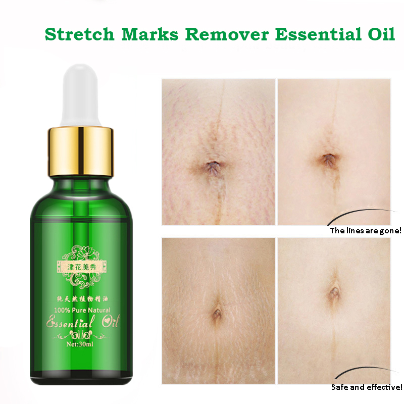 Stretch Marks Remover Essential Oil Skin Care Treatment Cream For Stretch Mark Removal Maternity Slackline For Pregnant Oils