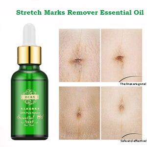 Stretch Marks Remover Essential Oil Skin Care Treatment Cream For Stretch Mark Removal Maternity Slackline For Pregnant Oils(China)