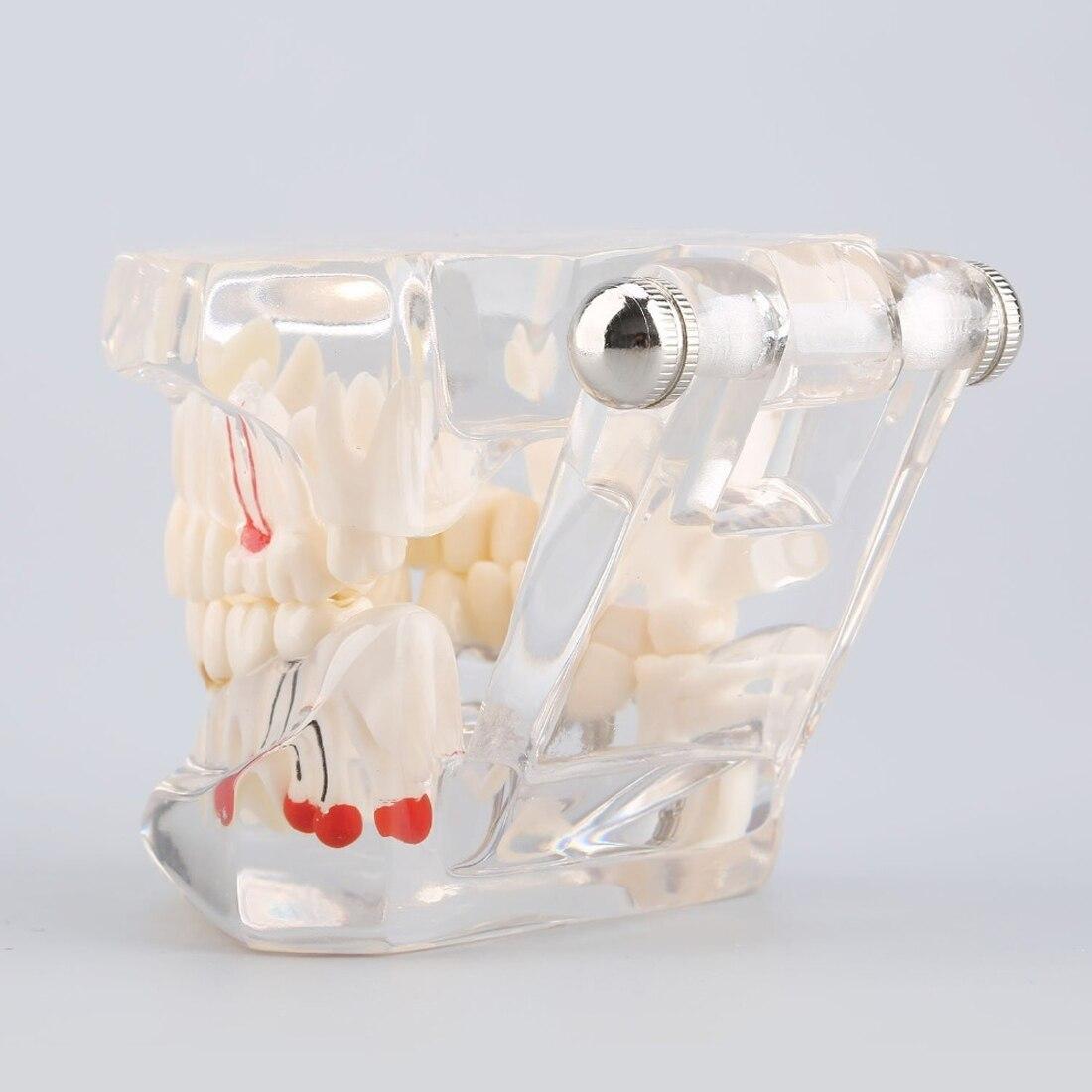 Новый учебно-исследовательский инструмент для медицинских исследований, стоматологическая инфекция, зубной имплантат, модель зубов с