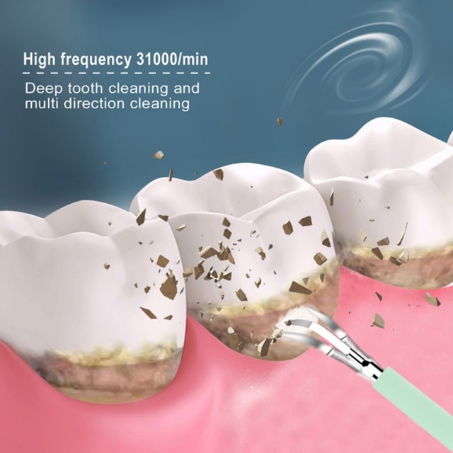 Teeth Whitening Cleaning High Frequency Vibration Tartar Remover 5