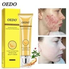 Whitening Plant Extraction Repair Acne Cream Skin Care Acne Treatment Pigmentation Corrector Moisturizing Oil-Control Face Care