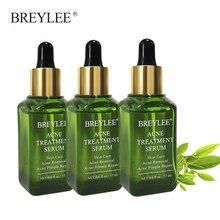 Tratamento facial da acne de breylee soro rosto cicatriz remoção da espinha clareamento acne remover acne cuidados de saúde da pele produto