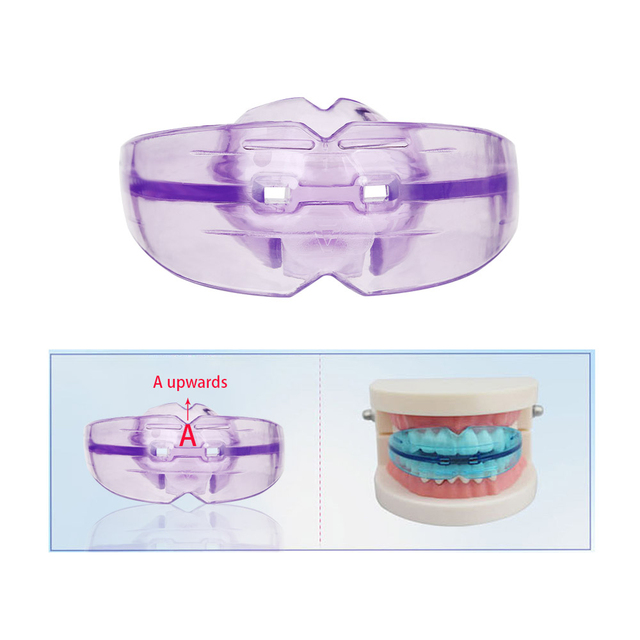 Orthodontic Braces Dental Braces Instanted Silicone Smile Teeth Alignment Trainer Teeth Retainer Mouth Guard Braces Tooth Tray 5