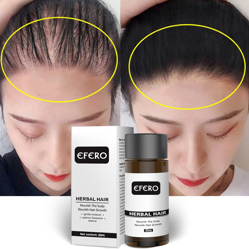 EFERO Powerful Hair Growth Serum Prevent Hair Loss Essential Oil More Thick Prevent Hair Loss Professional Hair Growth TSLM2