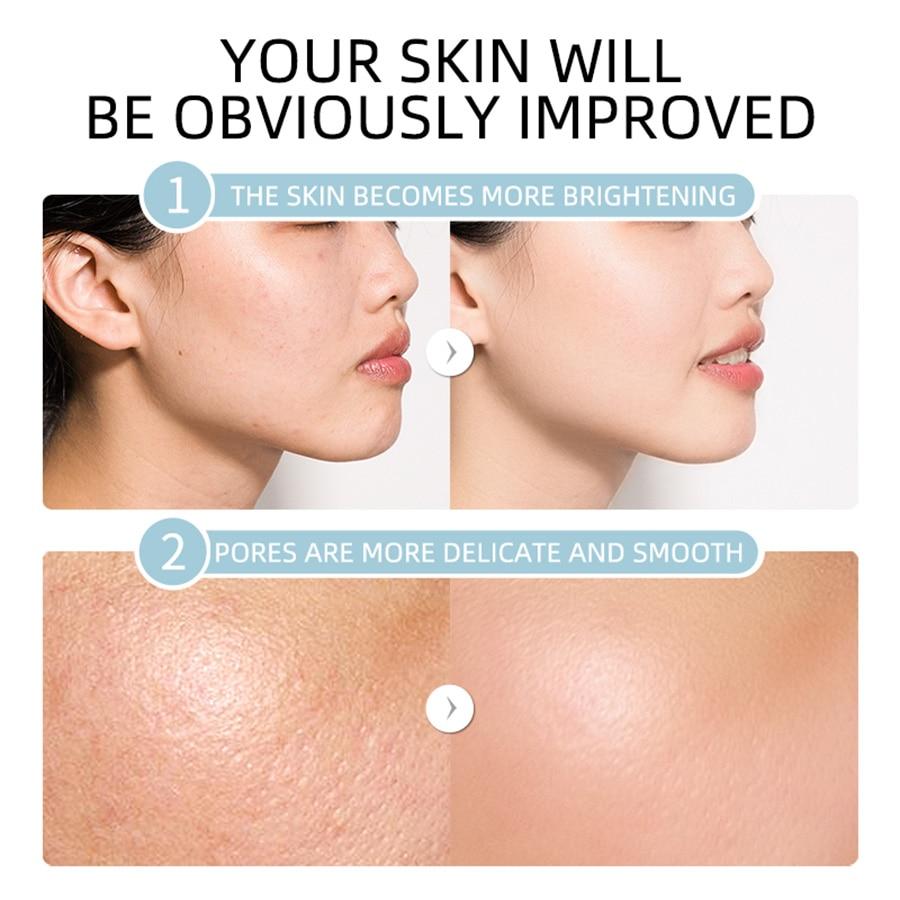 Bye 10 Get 1 LAIKOU Serum Vitamin C Essence Acne print Anti-Aging Pure Whitening Hydration The Ordinary Skin Care Face Serum