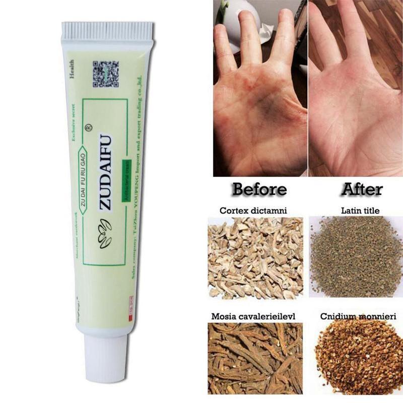 1PC cuerpo Psoriasis dermatitis y eccema Psoriasis prurito piel China masaje cremas Psoriasis cremas faciales de limpieza
