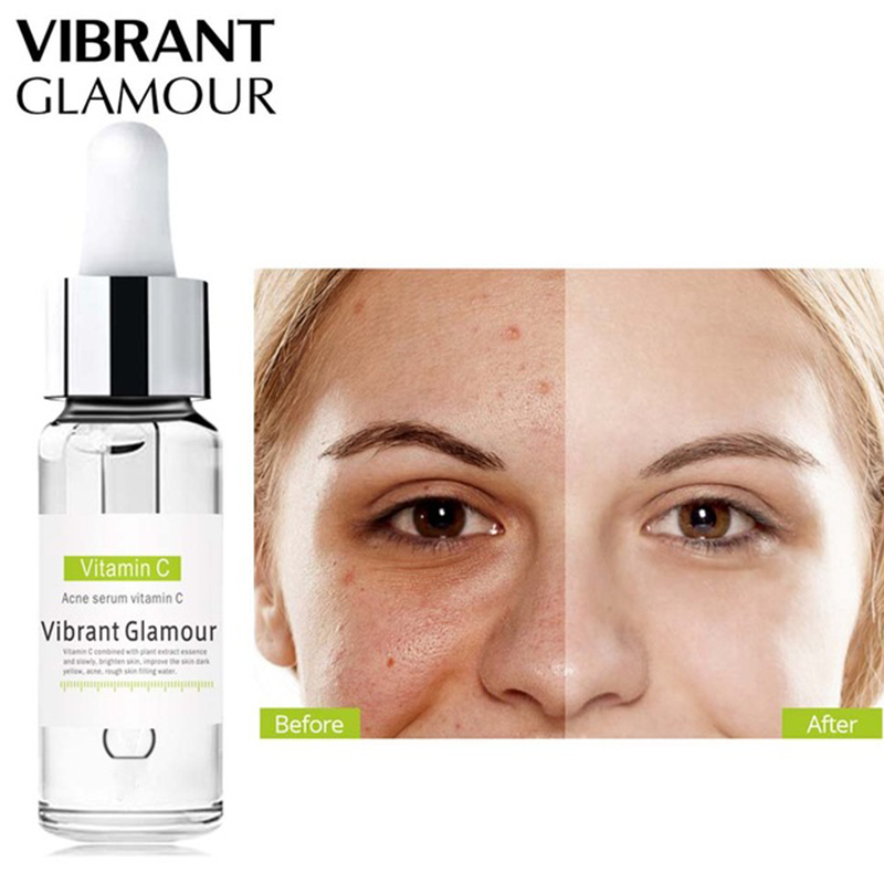 VIBRANT GLAMOUR Vitamin C Whitening Face Serum Hyaluronic Acid Cream Remover Acne Treatment Fade Dark Spots Anti-Aging Skin Care