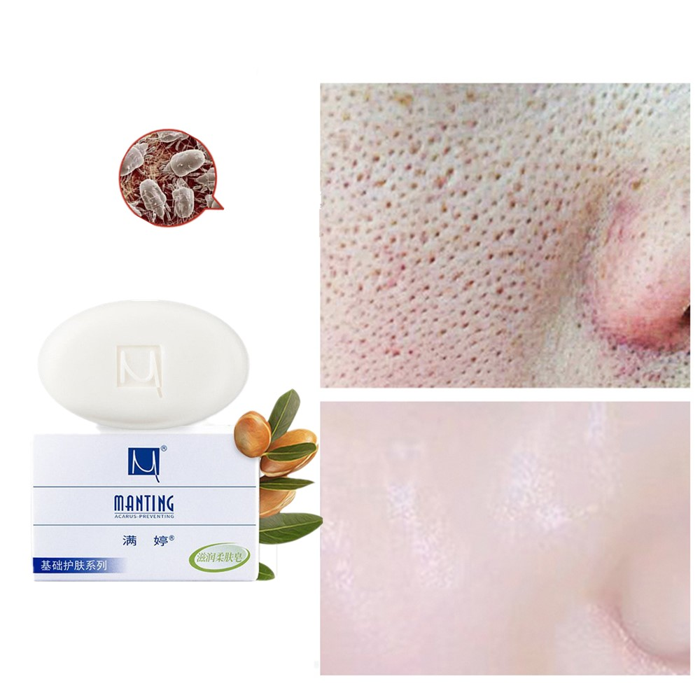 Men And Women Acne Cleanser Soap Treatment Of Acne Black-headed Red Scars Plant Extraction Melatonin For Antipruritus Whitening