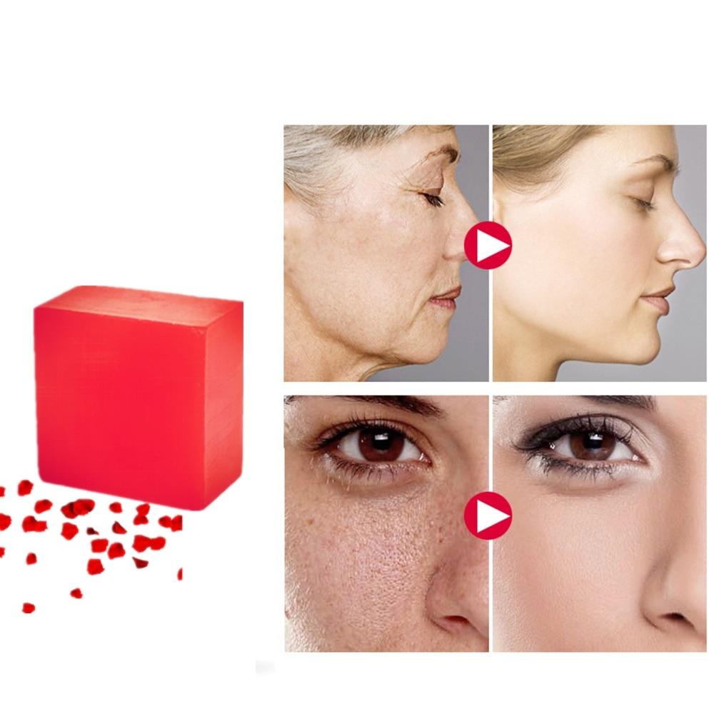 100g Rose Scar Pigmentation Repair Essence Soap Nature Flower Acne Treatment Handmade Soaps Skin Whitening Cells Regeneration