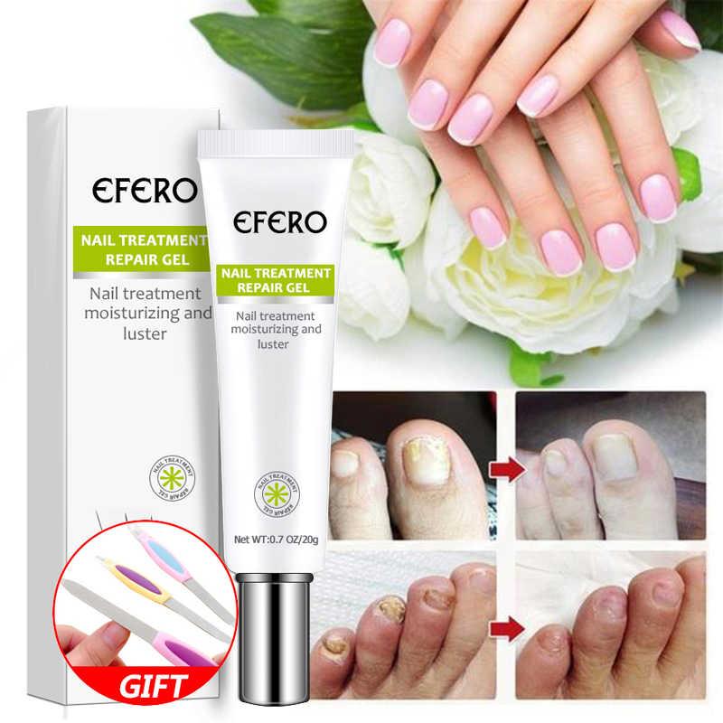 Mantar tırnak tedavisi Serum tırnak ayak tırnak mantarı kaldırma jel Anti enfeksiyon Onychomycosis çivi tamir esanslı krem ayak bakımı