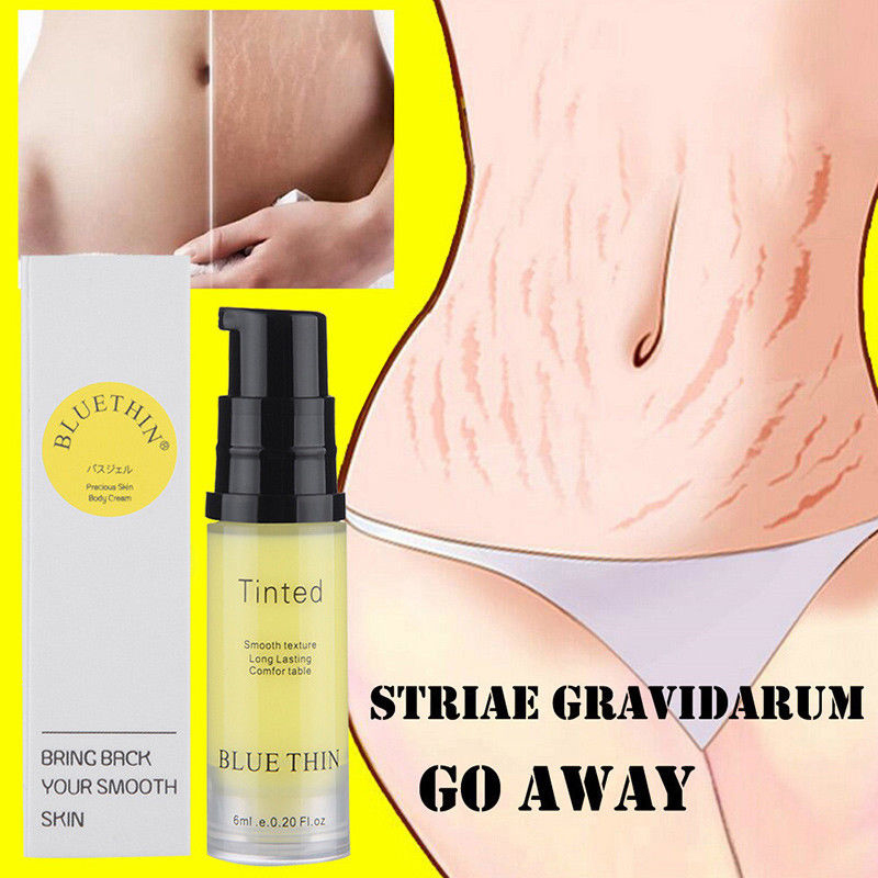 Natural Mild Non-irritating Stretch Marks Cream For Pregnancy Repair Scar Removal Scar Marks Cream Fat Scar Striae 6ML TSLM1
