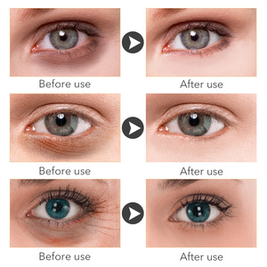 Image 3 - MEIKING Eye Mask Collagen Remover Dark Circles Eyes Patches Hyaluronic Acid Nicotinamide Anti Puffiness Anti Aging Eyes Care60pc