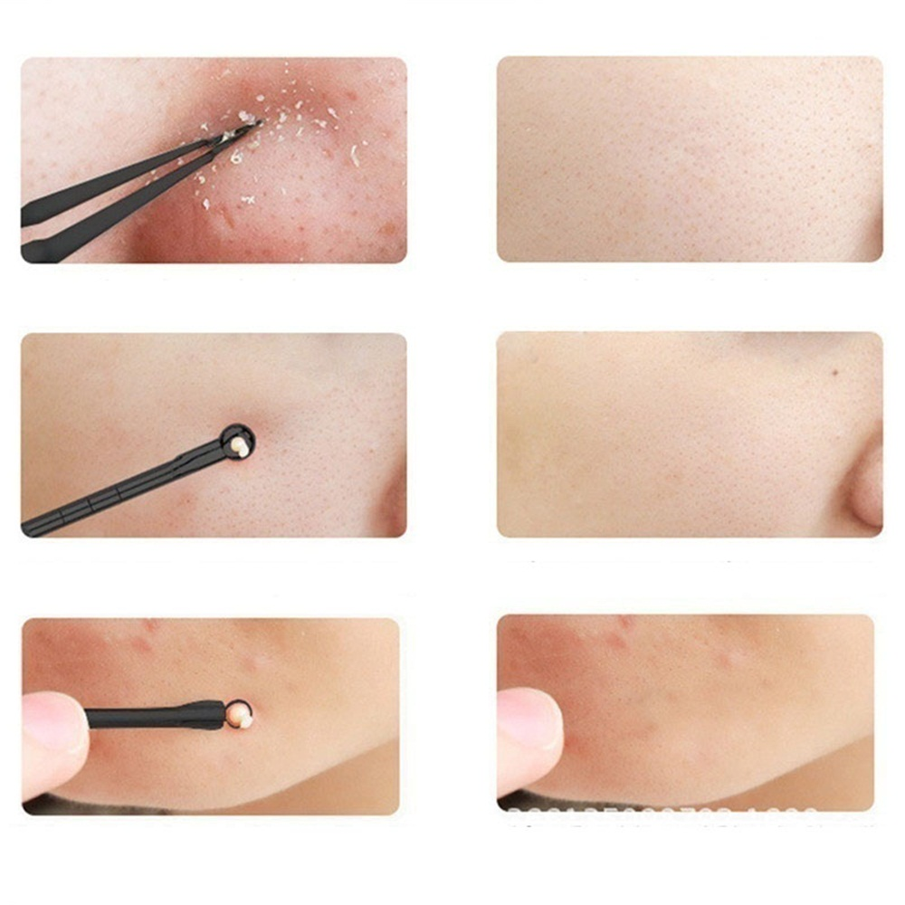 3PCS Blackhead Extractor Cleaner Acne Blemish Remover Needles Set Stainless Black Spots Face Pore Facial Cleanser Tools