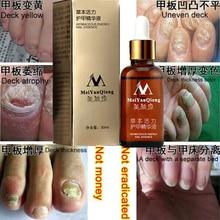Original Fungal Nail Treatment Essence Nail and Foot Whitening Toe Nail Fungus