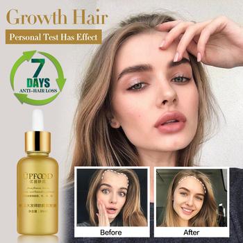 Esencja na długie rzęsy olej kuracja przeciw wypadaniu włosów dla wzrostu włosów pielęgnacja włosów zapobieganie wypadaniu włosów produkty tonik do włosów gruby tanie i dobre opinie 20161242 Produkt wypadanie włosów Seabuckthorn Polygonum Arborvitae leaves Angelica 1 bottle 30ml YFY08 Fast Hair Growth