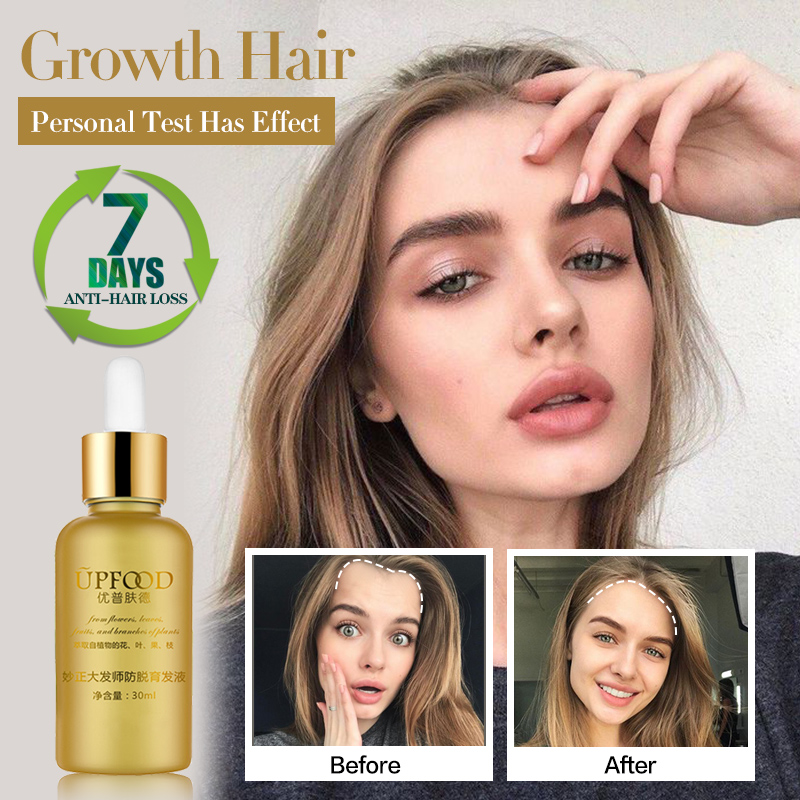 Hair Growth Essence Oil Anti Hair Loss Treatment For Hair Growth Hair Care Anti Preventing Hair Loss Products Hair Tonic Thick