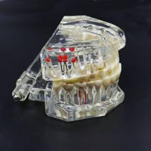Модель зубного импланта модель для коррекции зубов активная