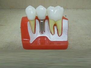 Image 5 - Nha Khoa Biểu Tình Răng Mô Hình Giả Phân Tích Thái Cầu