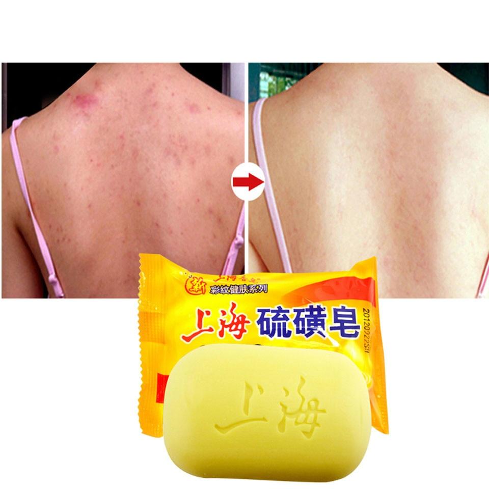 Шанхай серы мыло лечения акне Черноголовых Remover очищающее мыло отбеливание масло-контроля традиционных уход за кожей