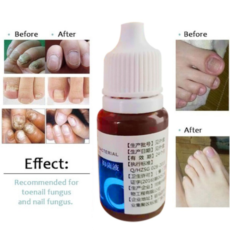 Nail Repair Solution Fungus Removal Gel Anti Infection