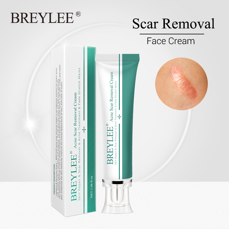 Breylee Acne Scar Removal Cream 30g Face Cream Skin Repair Skin Care Scar Acne Treatment Remove Stretch Marks Whitening Cream Facial Self Tanners Bronzers Aliexpress