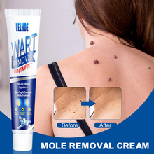 Skin Tag Removal Solution Safe Gentle Painless Mole Skin Dark Spot Removal Face Wart Tag Freckle Removal Cream Oil Plaster