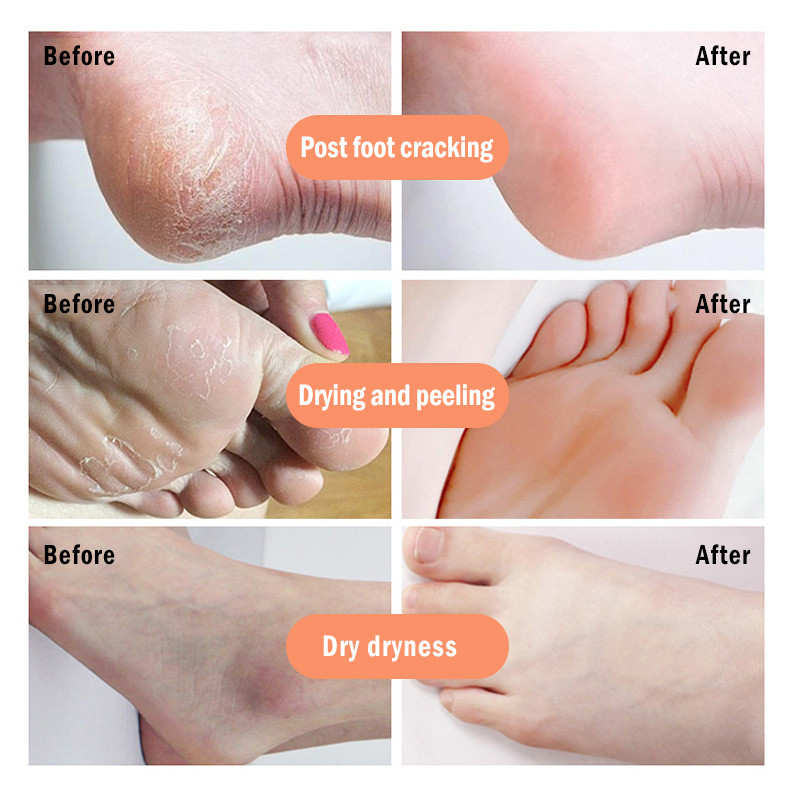 Image 2 - Cracked Heel Cream Feet Remove Dead Skin Soften Foot Anti Drying  Cracked Heal  Callus Repair Cream Foot Care Pedicure Tools-in Foot Care Tool from Beauty & Health