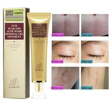24pcs LANBENA Acne Scar Removal Cream Skin Repair Stretch Marks Remover Cream Acne Spots Acne Treatment Skin Care (NO BOX )