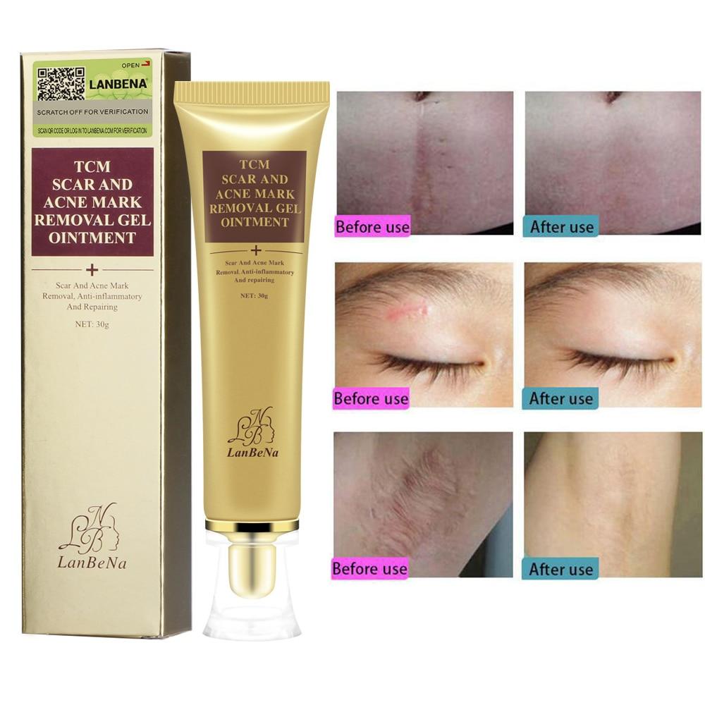 30g Lanbena Acne Scar Removal Cream Skin Repair Stretch Marks Remover Cream Acne Spots Acne Treatment Skin Care No Box Serum Aliexpress
