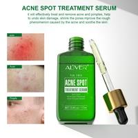 Acne Treatment Serum Facial Serum Anti Acne Scar Removal Cream Whitening Effectively Treat Repair Pimples Skin Care TSLM1 2