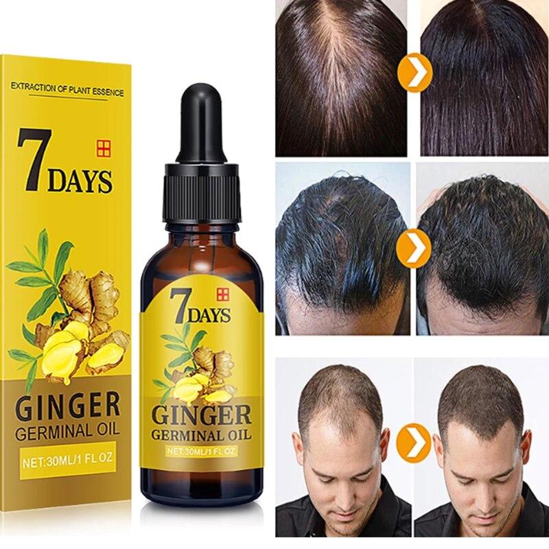 Etkili saç dökülmesi tedavisi klimalar yetişkin zencefil hızlı saç büyüme Serum uçucu yağ hızlı büyüme saç onarım büyüyen
