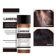 20 мл Уход за волосами эфирное масло жидкость для роста волос уход за волосами Regrowth предупреждающий потерю волос средство для ухода за волосами