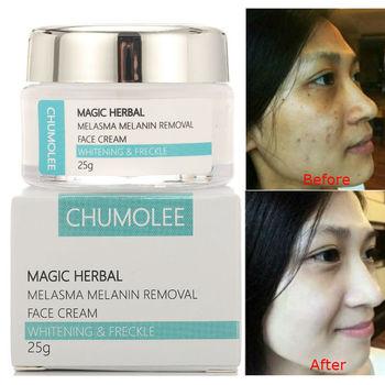 CHUMOLEE Strong Whitening Facial Cream Remove Freckle Melasma Acne Dark Pigment Spots Melanin Pimple Cream Brighten Face Cream