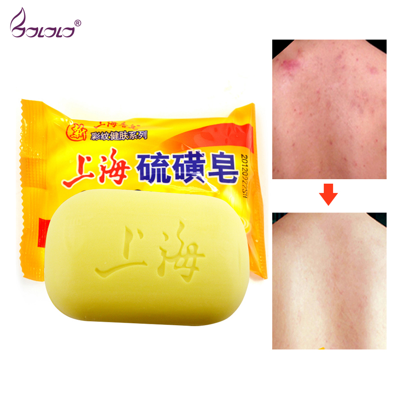 Shanghai Sulfur Soap Oil-control Acne Treatment Blackhead Remover Soap 90g Whitening Cleanser Chinese Traditional Skin Care