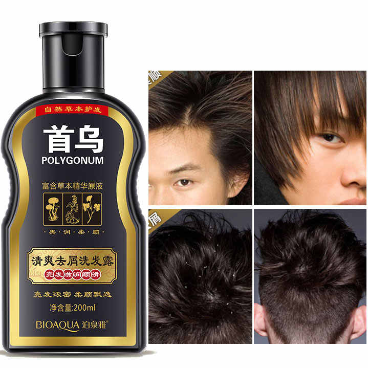 Polygonum Multiflorum ขจัดรังแคแชมพู Anti Hair Loss Moisturizing Refreshing Oil Control สีดำผม