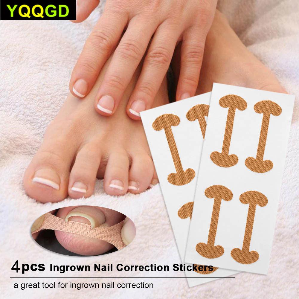 8Pcs/Set Toe Nail Care Pedicure Tools Toenail Corrector Stickers Curved Brace Straightening Clip Toenails Thick Paronychia