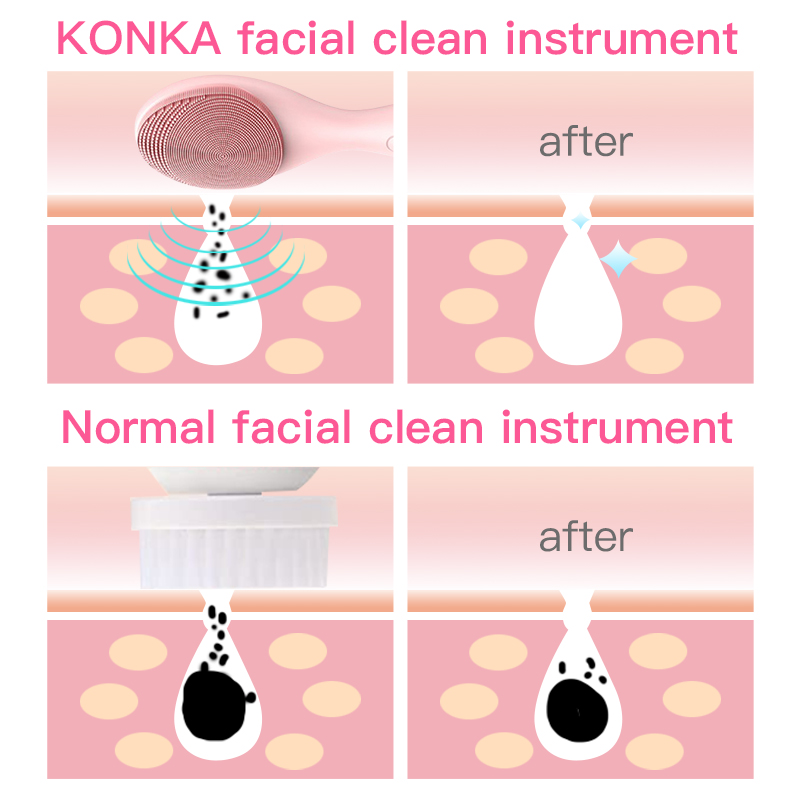 KONKA Electric facial cleansing brush IPX6 waterproof Blackhead Face Washer Beauty equipment Sonic Face Massager 4