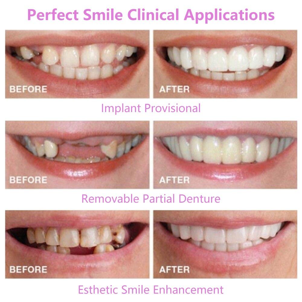 H9f015c231bda40efbd88e4c48b05cfa9u - Dentures False Teeth Cover Upper Lower Perfect Smile Comfort Fit Flex Denture Braces Teeth Whitening