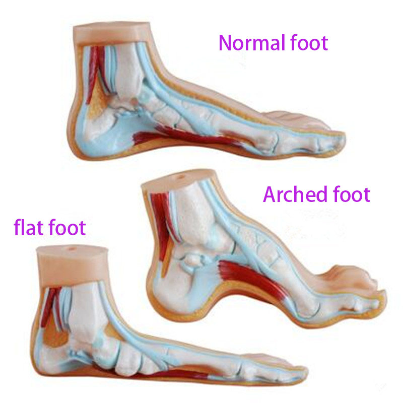 PVC Material Normal Foot Flat Foot Arched Foot Model Foot Pathology Model Human Foot Muscle Anatomy Model