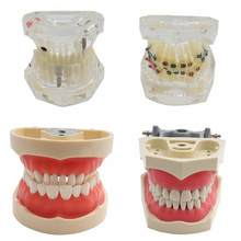 Dental model Teeth Model Orthodontic Teeth Model with Brackets & Buccal Tubes & Ligature Wire Implant and Restoration Model