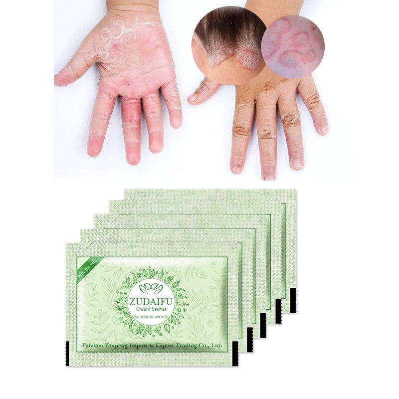 50pcs/lot Original ZUDAIFU Psoriasis Dermatitis Eczema Pruritus Skin Problems Cream Pouch Same Effect As Tube
