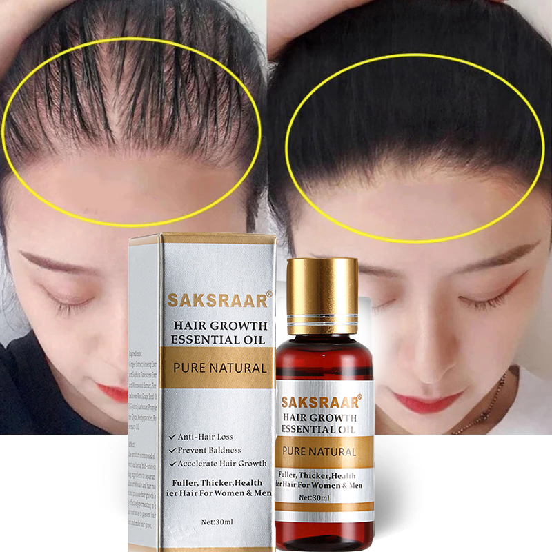Cuidados com o cabelo crescimento do cabelo óleos essenciais essência original autêntico 100% perda de cabelo líquido cuidados de saúde beleza densa crescimento do cabelo soro