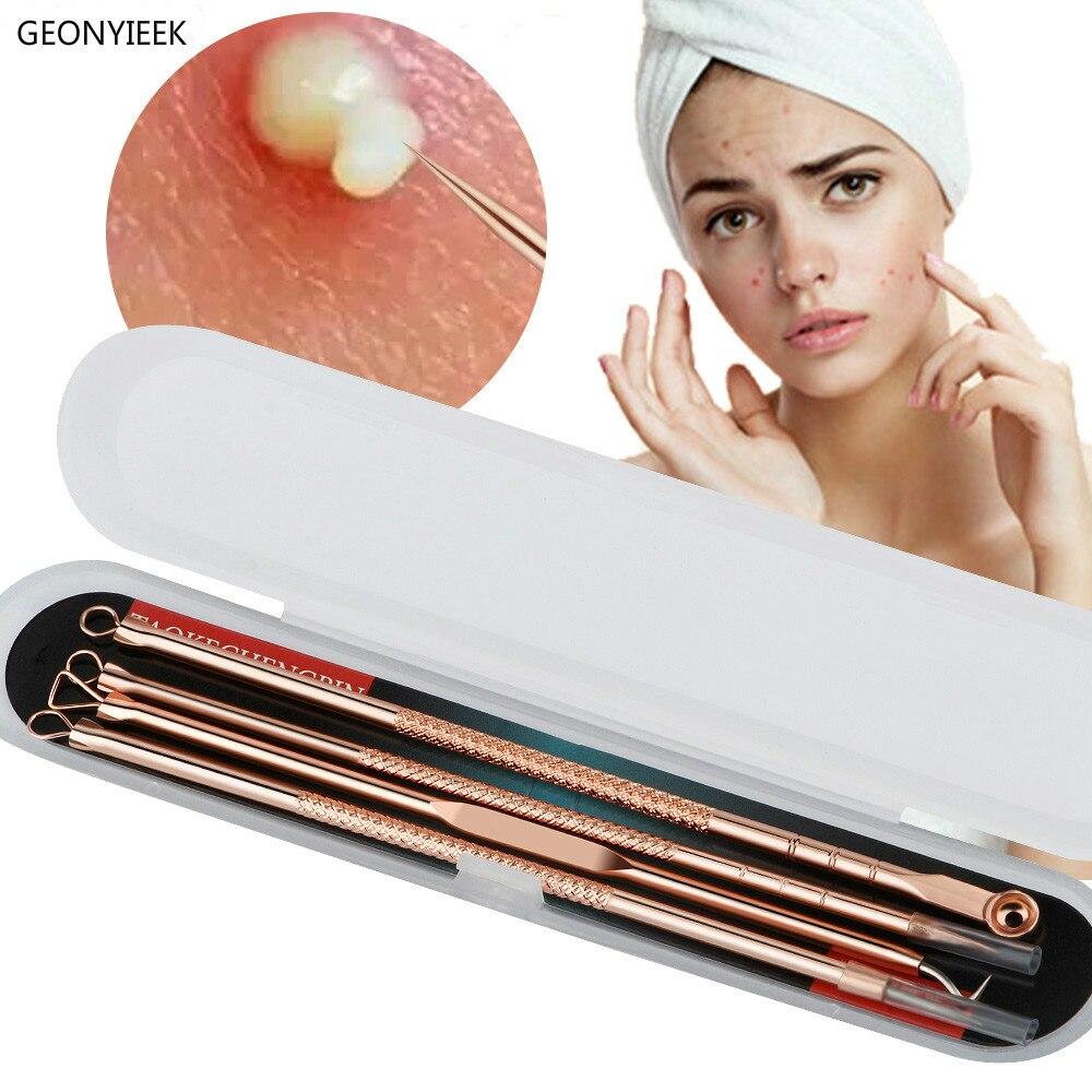 Rosa de ouro 4 pçs/set cravo comedone acne espinha belmish extractor vácuo cravo removedor ferramenta colher para rosto cuidados com a pele ferramenta