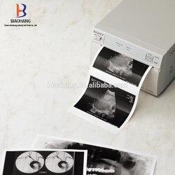 5X nouveau produit 2016 UPP-110S et UPP-110HG et UPP-110HD rouleau de papier thermique à ultrasons pour imprimante sony