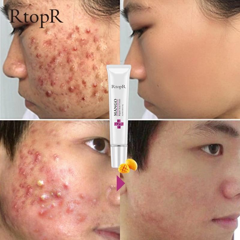 Mango Repair Acne Cream Anti Acne Spots Acne Treatment Scar Blackhead Cream Shrink Pores Whitening Moisturizing Face Skin Care