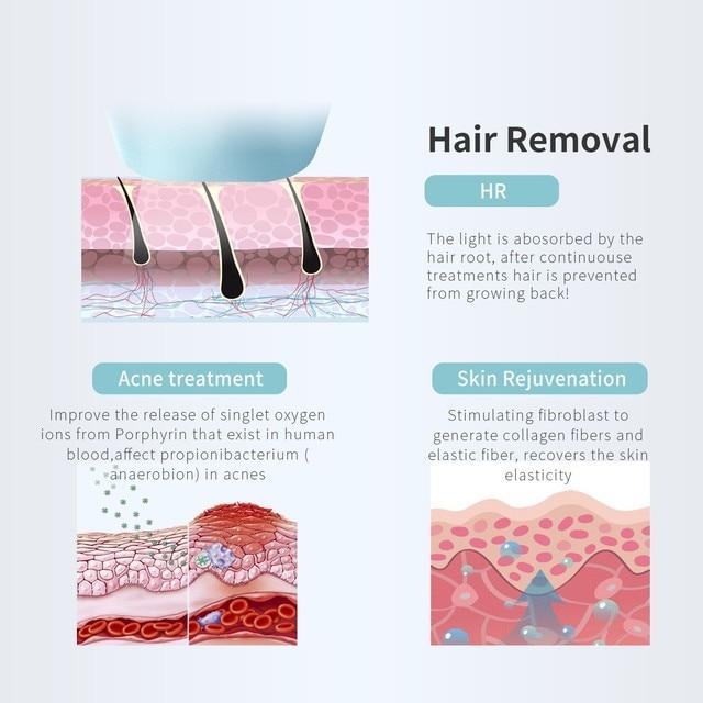 Master Laser Hair Removal System IPL DEESS GP590 Triplecare Master 0 9s Laser Permanent Hair Removal System IPL Hair Remover instrument cool