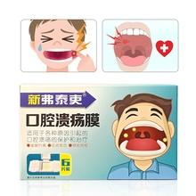 KONGDY 6Pc Canker ból leczenie naklejki usta wrzód ustny pokrywa łatka antybakteryjny Film ulga Canker rany ból nie drażniące tanie tanio CN (pochodzenie) 20150005 Jamy ustnej i nosogardzieli opieki Piersi Chitosan vinol etc 0 015kg BOX Mouth Ulcer Patch